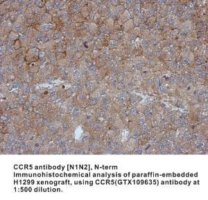 Anti-CCR5 Rabbit Polyclonal Antibody