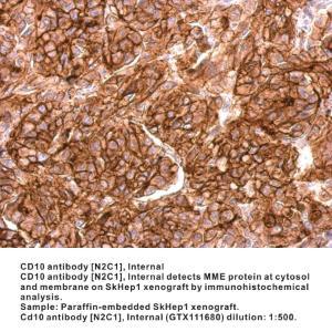 Anti-MME Rabbit Polyclonal Antibody