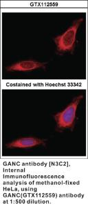 Anti-GANC Rabbit Polyclonal Antibody