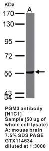 Anti-PGM3 Rabbit Polyclonal Antibody