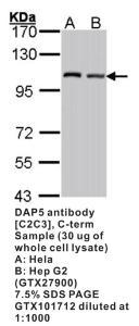 Anti-EIF4G2 Rabbit Polyclonal Antibody
