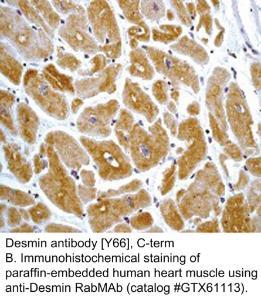 Anti-DES Rabbit Monoclonal Antibody
