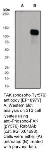 Anti-FAK Rabbit Monoclonal Antibody