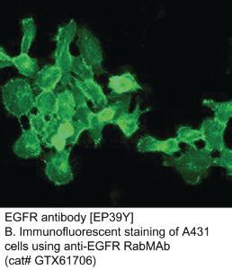 Anti-EGFR Rabbit Monoclonal Antibody
