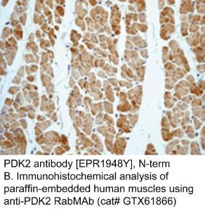 Anti-PDK2 Rabbit Monoclonal Antibody