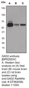 Anti-GAD2 Rabbit Monoclonal Antibody