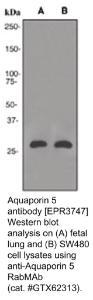 Anti-AQP5 Rabbit Monoclonal Antibody