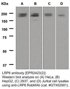 Anti-LRP6 Rabbit Monoclonal Antibody