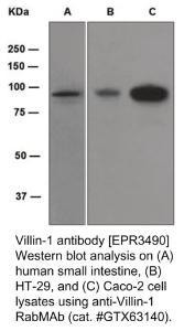 Anti-VIL1 Rabbit Monoclonal Antibody