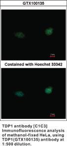 Anti-TDP1 Rabbit Polyclonal Antibody