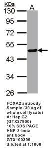 Anti-FOXA2 Rabbit Polyclonal Antibody