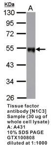 Anti-F3 Rabbit Polyclonal Antibody