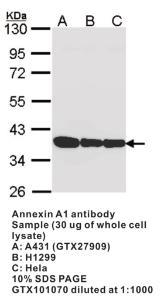 Anti-ANXA1 Rabbit Polyclonal Antibody