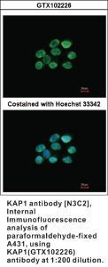 Anti-TRIM28 Rabbit Polyclonal Antibody