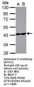 Anti-ALDOC Rabbit Polyclonal Antibody