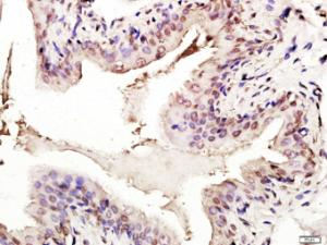 Formalin-fixed and paraffin embedded Rat Bladder tissue labeled with p53 (FL-393) Polyclonal Antibody (bs-8687R) at 1:200, followed by conjugation to the seconary antibody and DAB staining