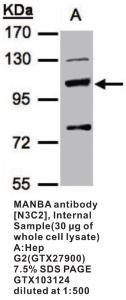 Anti-MANBA Rabbit Polyclonal Antibody
