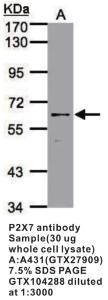 Anti-P2X7 Rabbit Polyclonal Antibody
