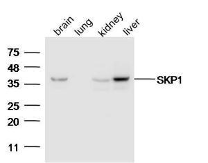 Anti-SKP1 Rabbit Polyclonal Antibody