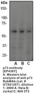 Anti-TP73 Rabbit Monoclonal Antibody