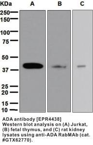 Anti-ADA Rabbit Monoclonal Antibody