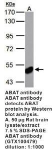 Anti-ABAT Rabbit Polyclonal Antibody