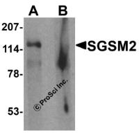 Western blot analysis of SGSM2 in human cerebellum tissue lysate with SGSM2 antibody at 1 ug/ml in (A) the absence and (B) the presence of blocking peptide